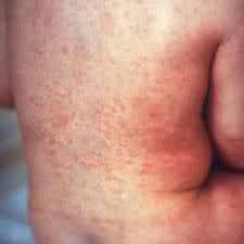 Немска брусница /рубеола/ - причини за поставяне на ваксина