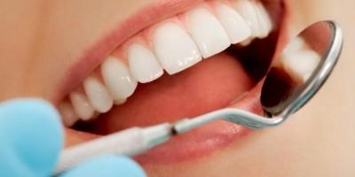 Защо трябва да се грижим за зъбите си