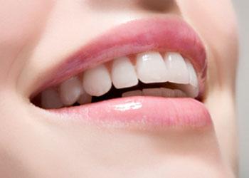 Какво трябва да знаете за зъбните имплантати?
