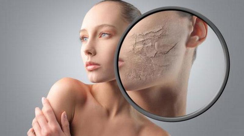 Съвети при суха кожа